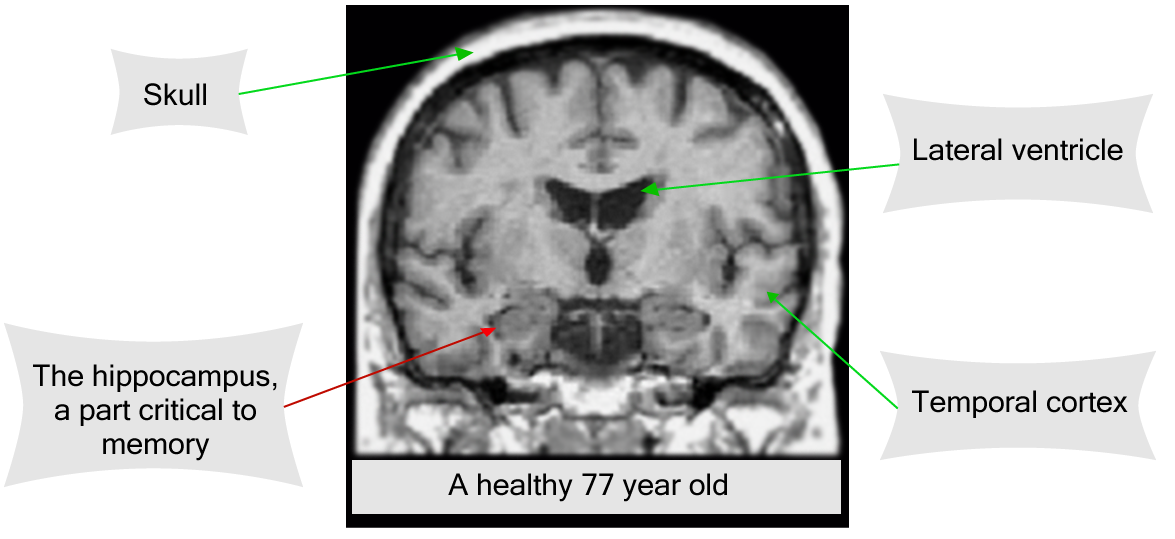 Brain Scan of a healthy old man
